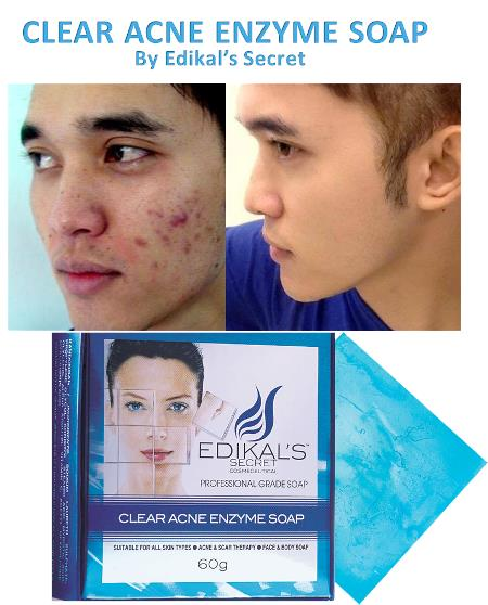 Clear Acne Enzyme Soap by Edikal's Secret with Free Extra Acne Mask