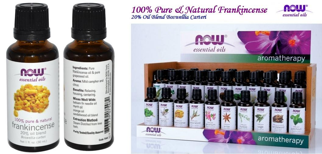 Frankincense Essential Oil, 100% Pure & Natural, Made in USA (30ml)