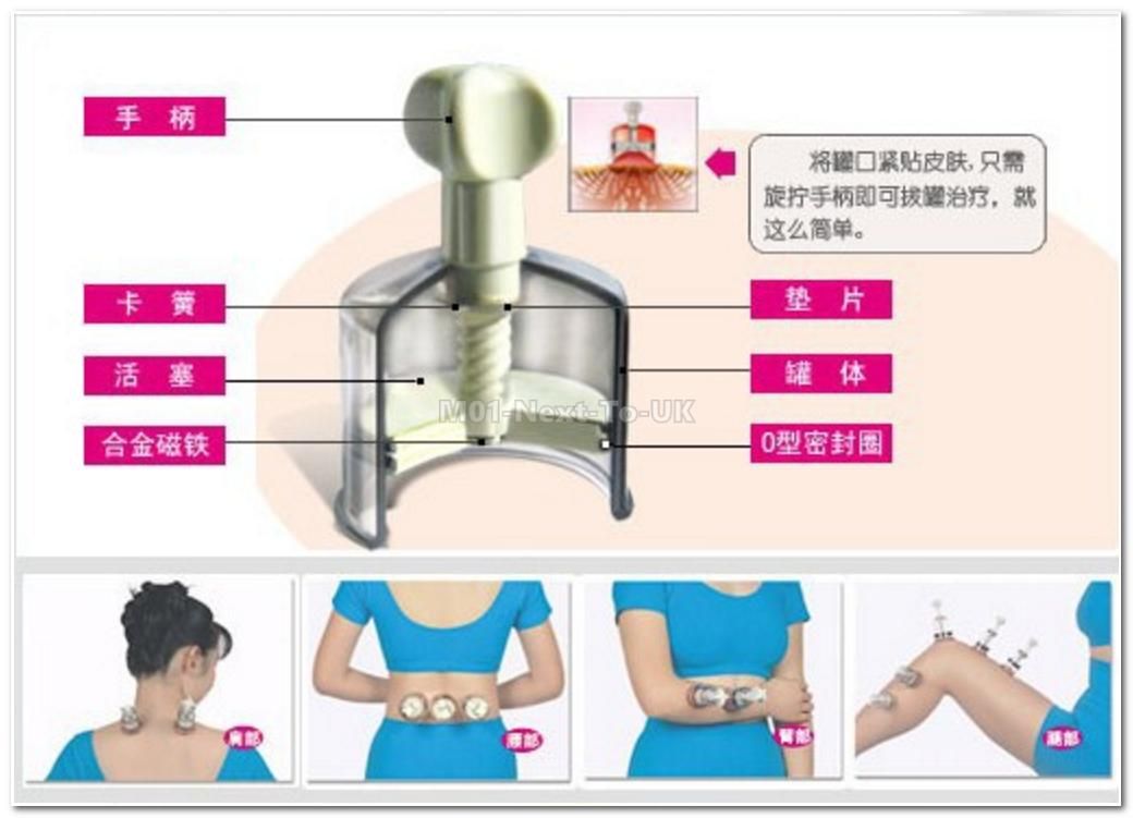 Medical Twist Cupping Magnet Massage Vacuum Therapy Anti-cellulite 8pc