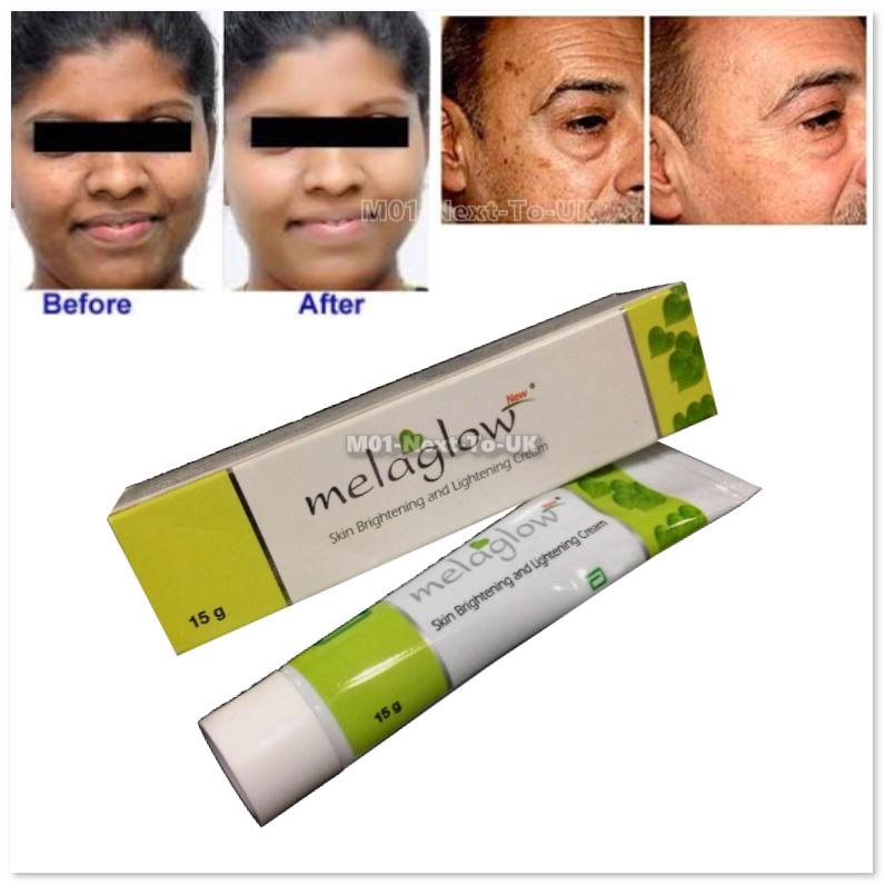 Melaglow Cream Skin Brightening Lightening Acne Marks Pigmentation Bro