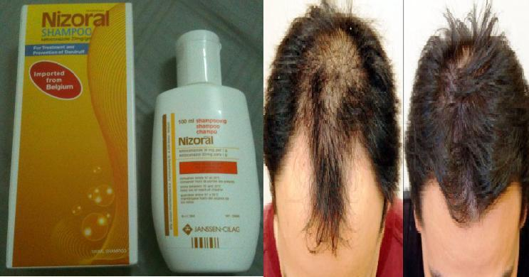 nizoral hair how to use
