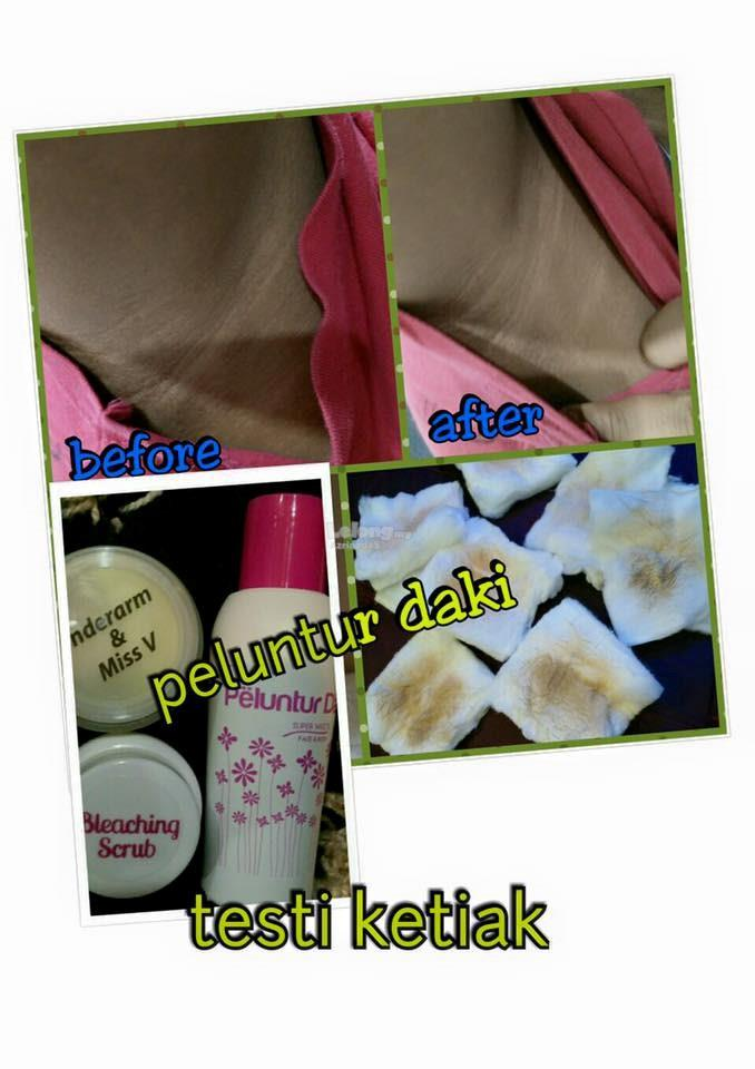 Peluntur Daki 3 in 1 (New Packaging)